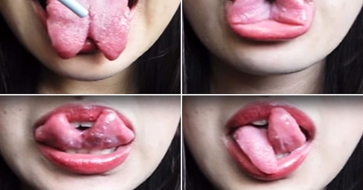 What causes thrush on tongue in adults