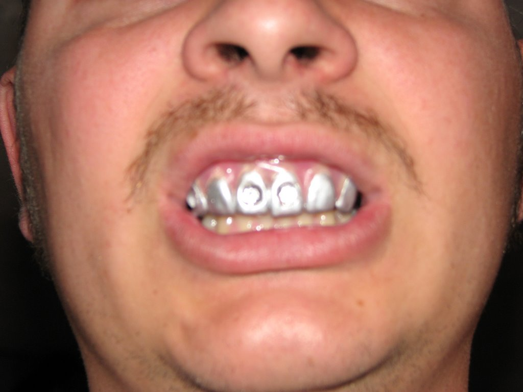Funny Silver Teeth Picture - Celebrities Without Teeth