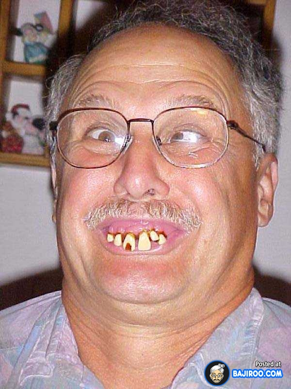 Man-With-Funny-Teeth-Picture.jpg