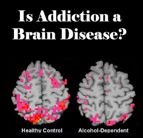 drug addiction as a recipe for brain disease in the documentary addiction In reality, drug addiction is a complex disease, and quitting usually takes more  than good intentions or a strong will drugs change the brain in ways that make.