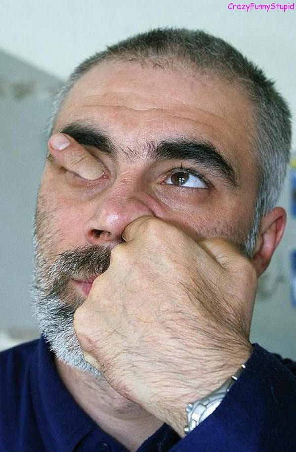 30 Very Funny Nose Pictures And Images