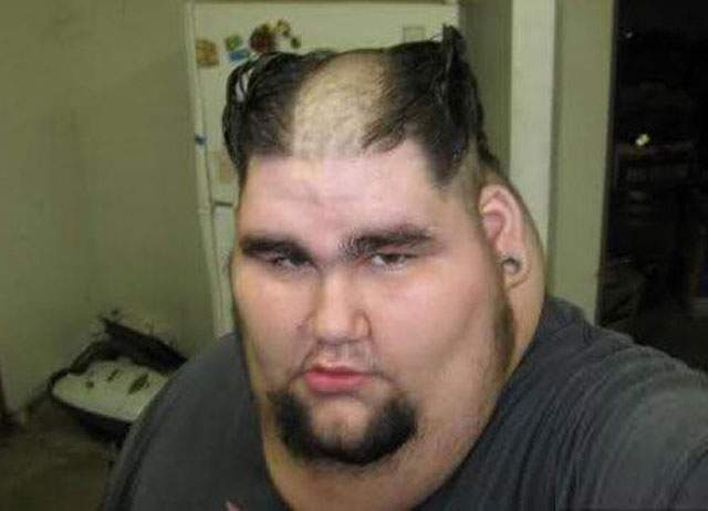 Fat Man With Funny Haircut