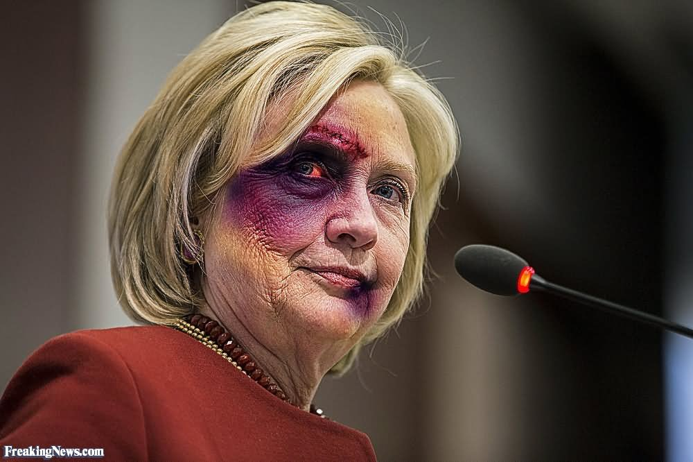 Hillary Clinton With Injured Eyes Funny Photo
