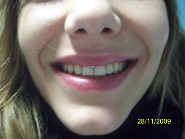 Beautiful Smiley Frenulum Piercing