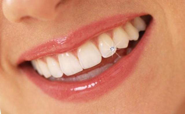 25 Beautiful Tooth Piercing Pictures