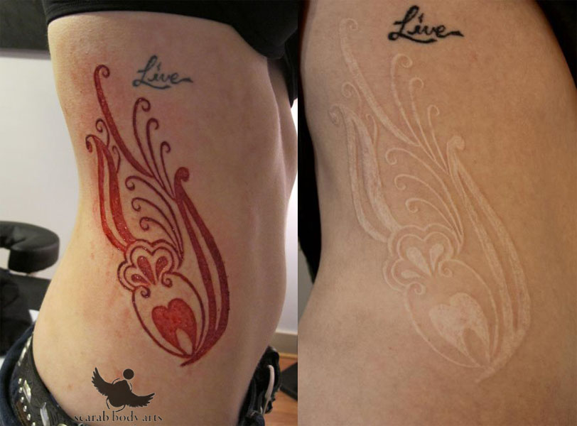 22 scarification before and after tattoos. Black Bedroom Furniture Sets. Home Design Ideas