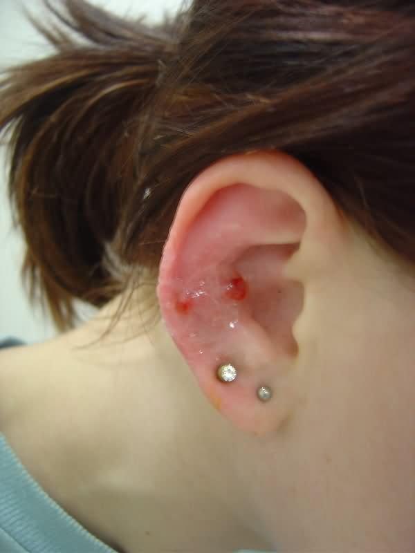 Double Lobes And Snug Piercing On Right Ear Ear Piercings Snug
