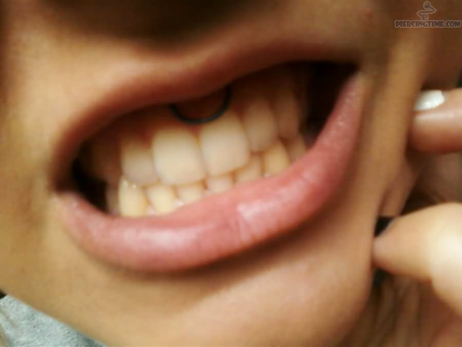 22 Smiley Piercing With Hoop Rings
