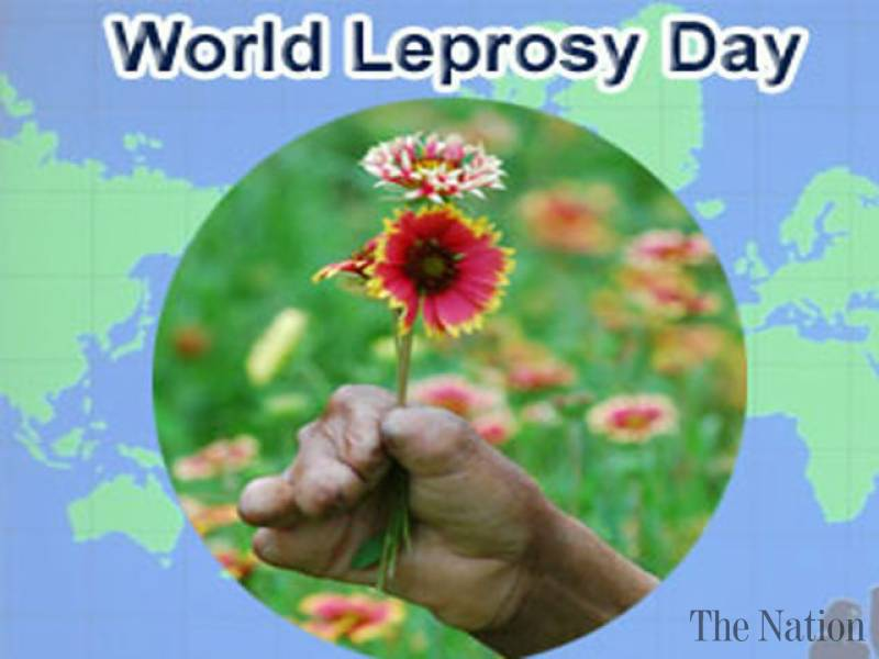 25 world leprosy day pictures and photos