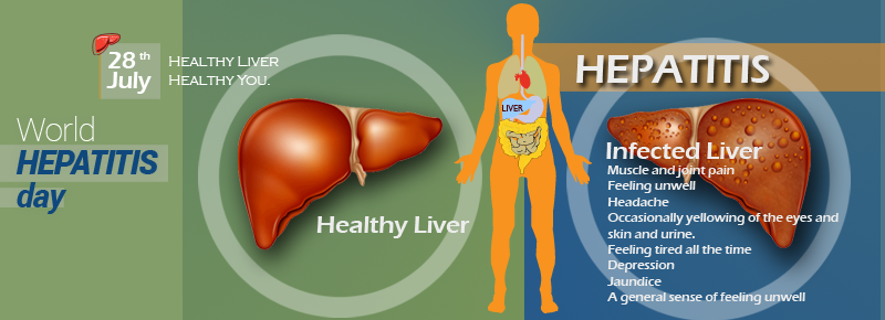 World Hepatitis Day 28th July - Healthy Liver Healthy You