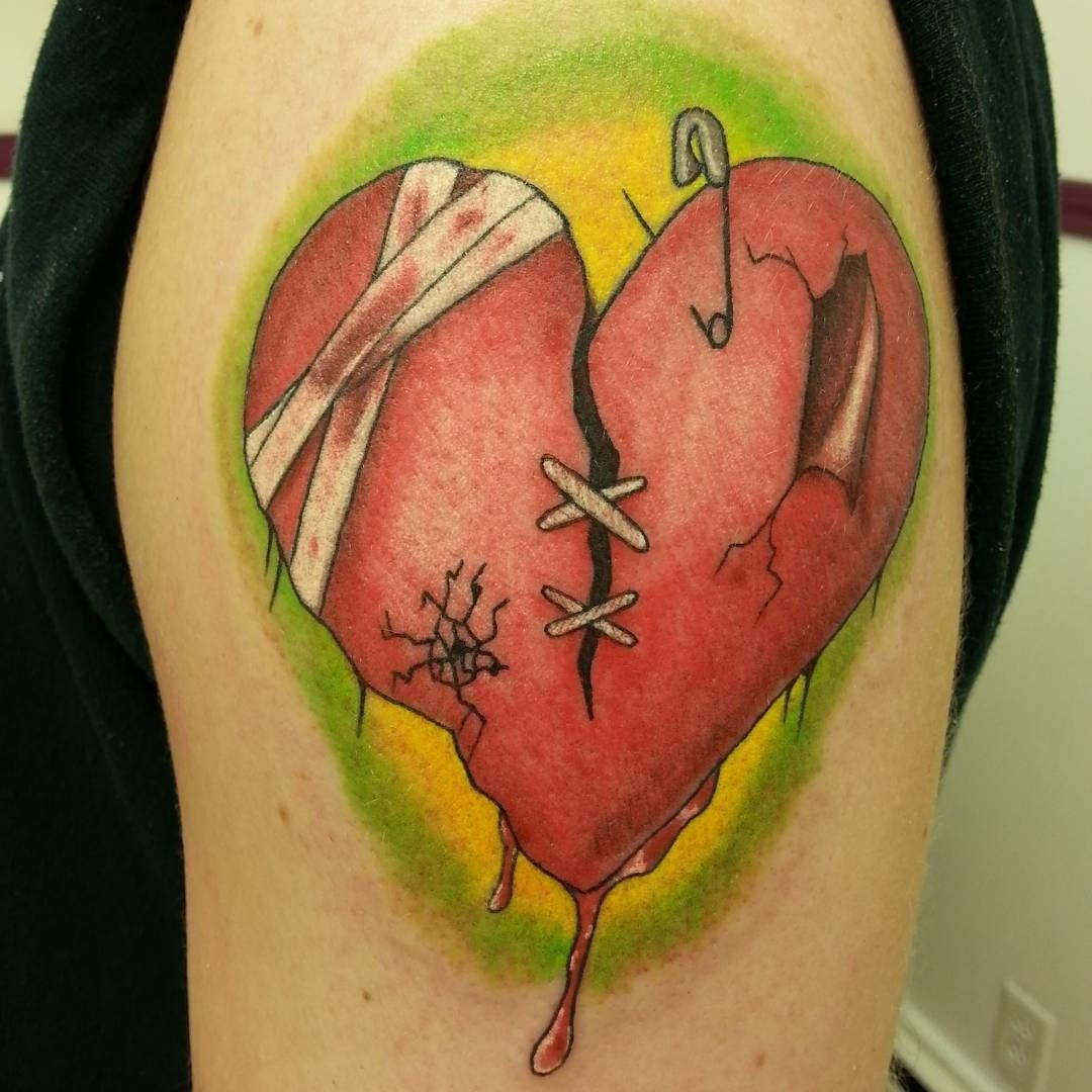 Red sewed and bandaged broken heart tattoo on arm