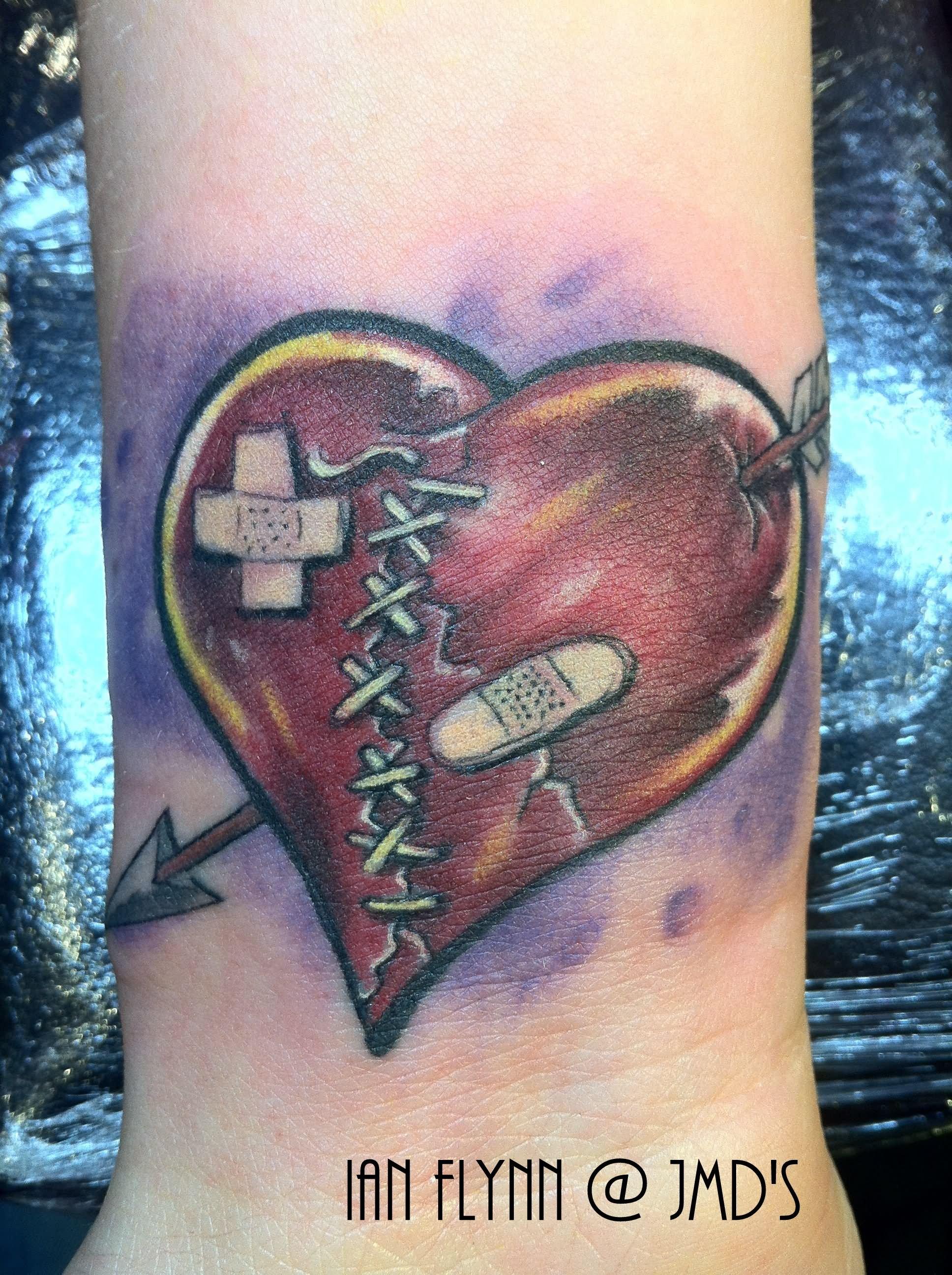 Red sewed broken heart tattoo on inner forearm